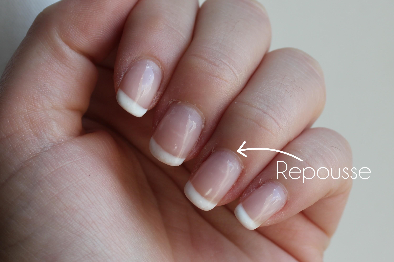 Mes ongles après la dépose de vernis permanent